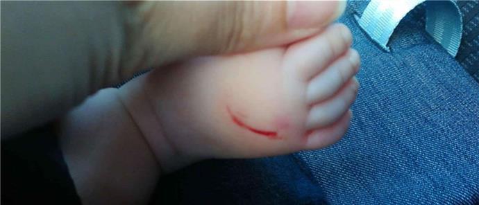 960a2a91c71 Καταγγελία για γυναίκα που χαρακώνει μωρά στα νότια προάστια (εικόνες) |  Γενικά | ANT1 News
